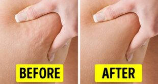 6 Exercises to Get Rid of Cellulite in 2 Weeks